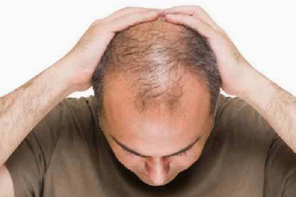 Way to get rid of premature baldness
